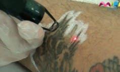 Video- Te contamos cómo eliminar tus tatuajes en Alcalá de Henares
