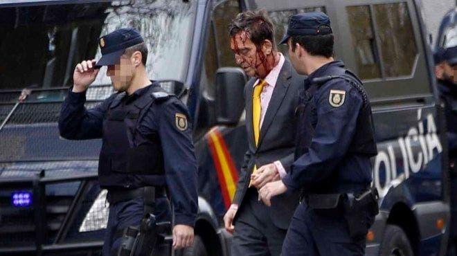 Resuelto el misterioso asalto al doctor Frade en Madrid