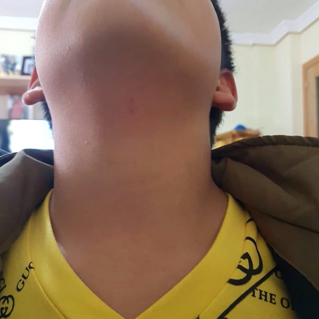 El pequeño Miguel muestra su herida (MiraCorredor.tv).