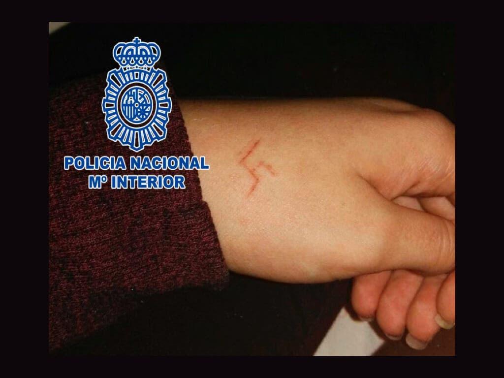 Seis jóvenes detenidos por marcar a fuego una esvástica a una menor