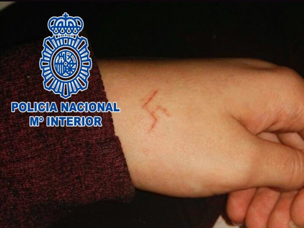 La menor agredida y marcada con una esvástica.
