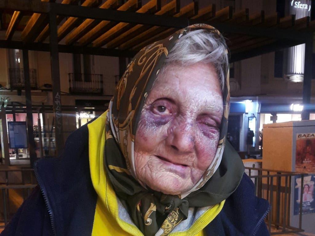 La Policía investiga la brutal agresión a una anciana sin techo en Madrid