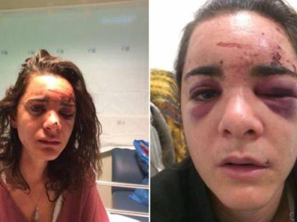 Violaron a una joven estadounidense en Madrid: