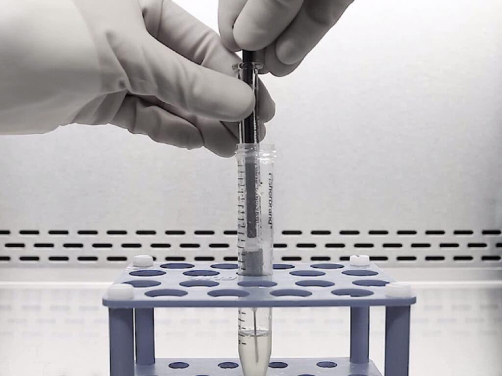 Madrid desarrolla un nuevo fármaco para pacientes con lesión medular