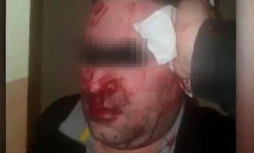 Brutal agresión a un vigilante en el Centro de Menores de Hortaleza