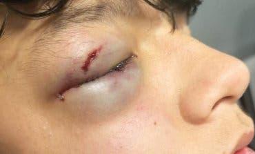 Brutal agresión a un menor en Vallecas
