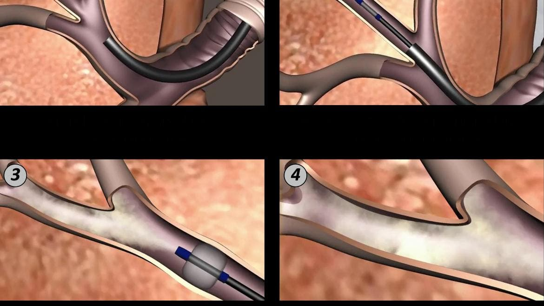 El Gregorio Marañón implanta una técnica pionera contra elenfisema pulmonar severo