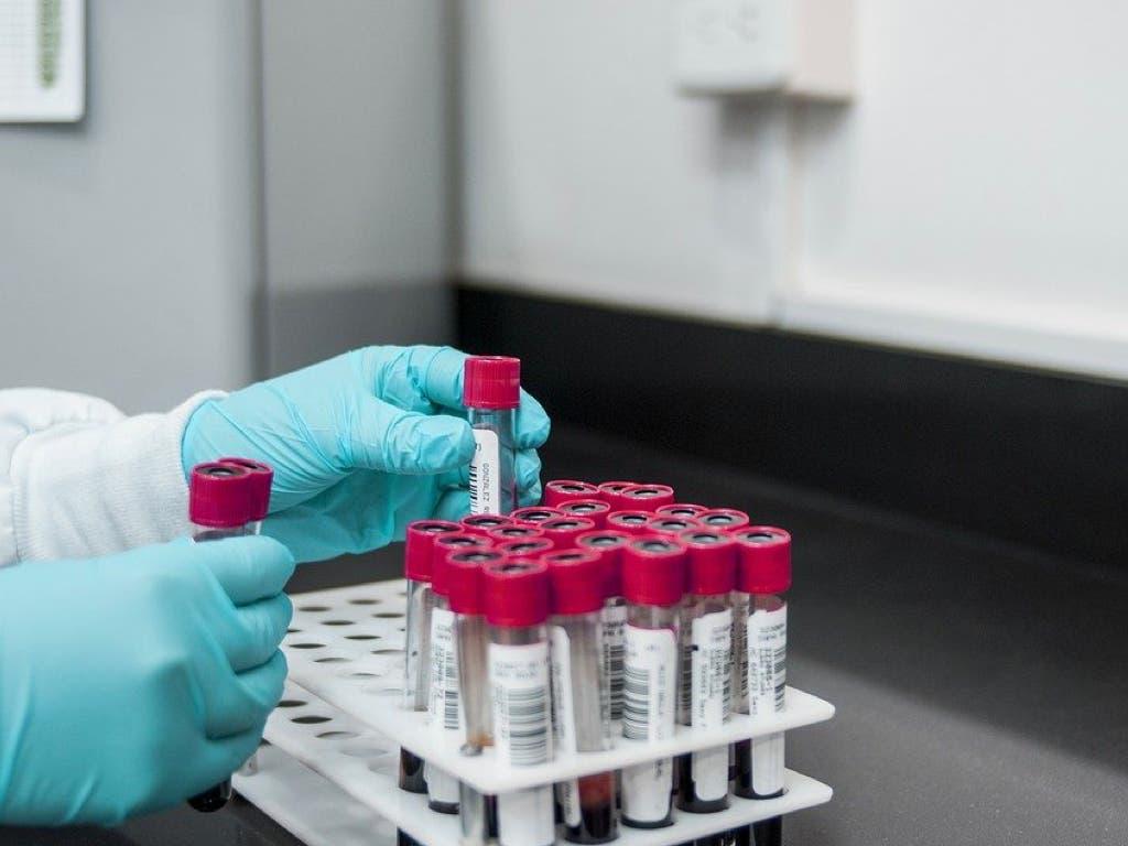 Coronavirus: Aumentan los contagios y los fallecidos diarios en España