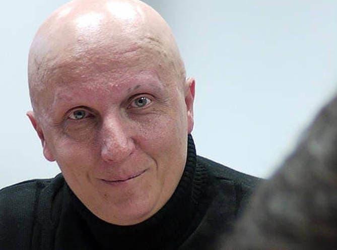 El hombre de los 2.000 tumores acepta 2 años de cárcel por estafa