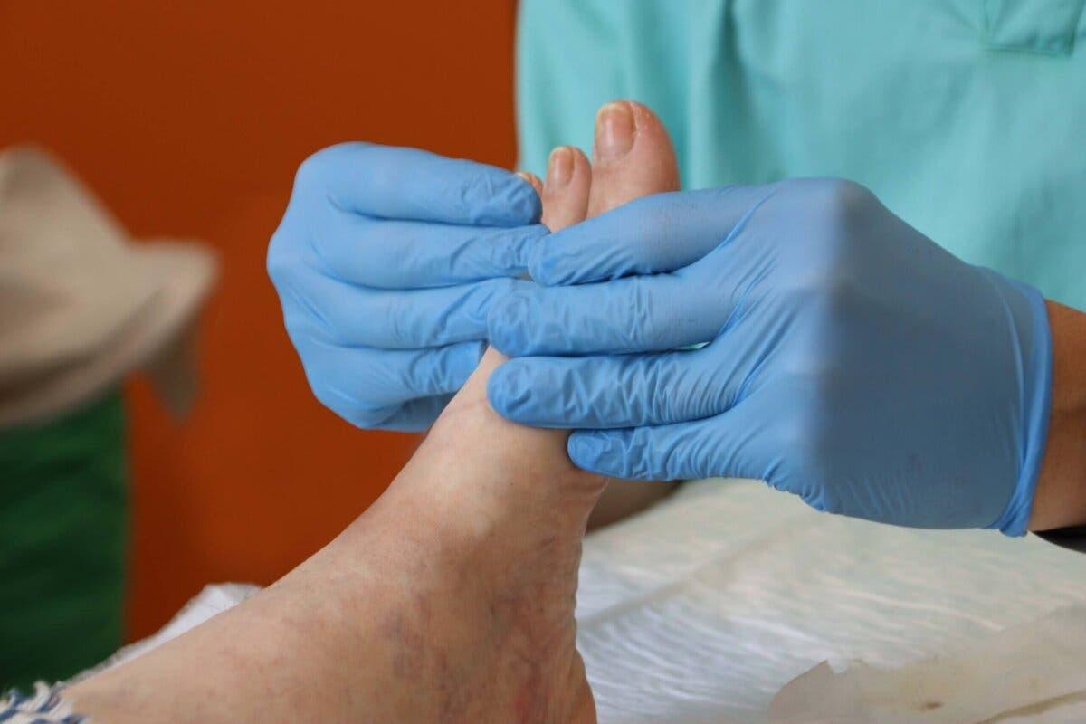 El Hospital de Torrejón advierte del aumento defascitis y tendinopatías por el abuso de chanclas en verano